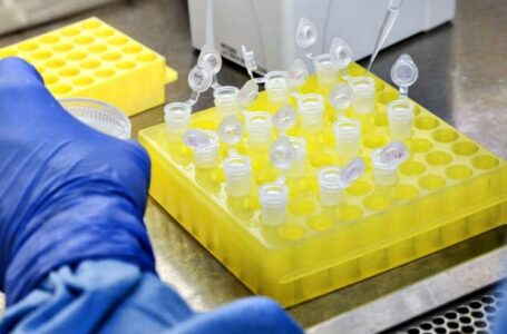 Anvisa aprova teste de anticorpos para o coronavírus criado pela Roche