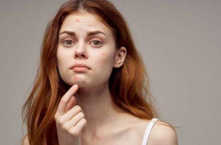 Como acabar com a acne: 3 passos para se livrar das espinhas