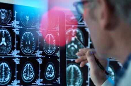 Alzheimer: Droga experimental mostra potencial contra doença